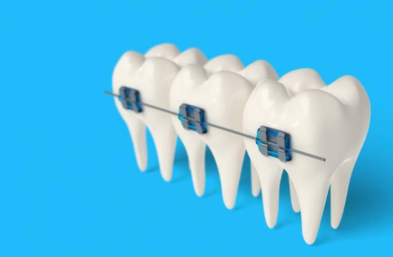 Ile zębów ma człowiek? Jakie są ich rodzaje i funkcje?