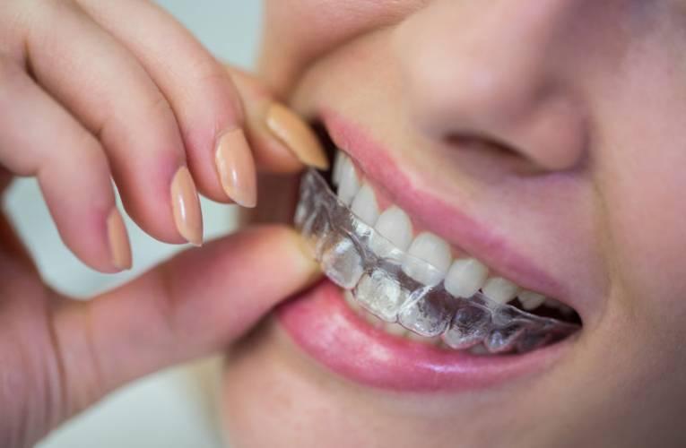 Czy aparaty ortodontyczne ruchome są skuteczne?